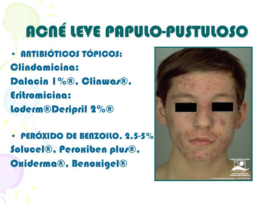 ACNÉ LEVE PAPULO-PUSTULOSO ANTIBIÓTICOS TÓPICOS: Clindamicina: Dalacin 1%®, Clinwas®. Eritromicina: Loderm®Deripril 2%® PERÓXIDO DE BENZOILO, 2,5-5% S