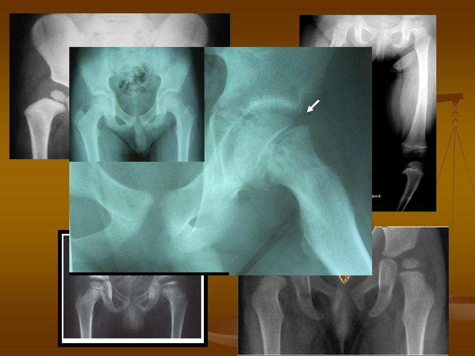 Interconsulta con COT Odx: posible menisco discoide.