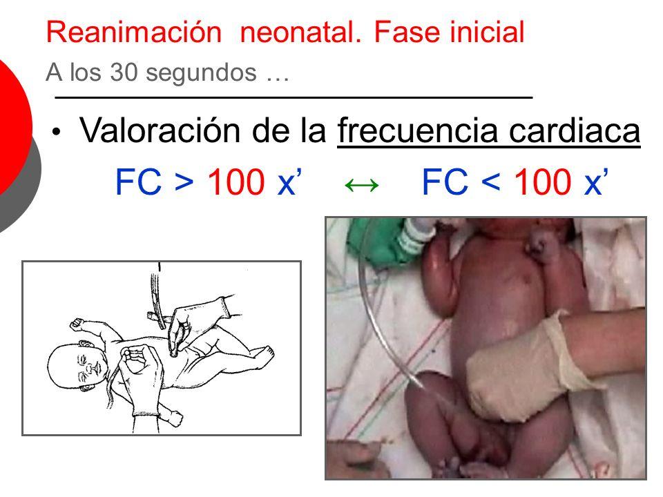 Reanimación neonatal. Fase inicial A los 30 segundos … Valoración de la frecuencia cardiaca FC > 100 x FC < 100 x