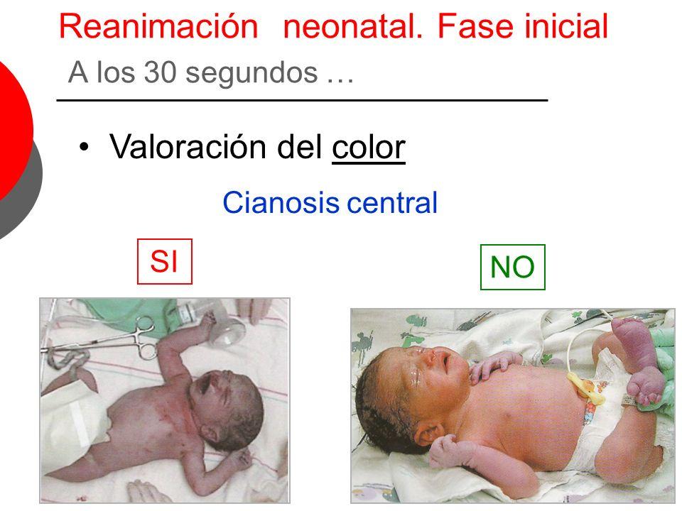Reanimación neonatal. Fase inicial A los 30 segundos … Valoración del color Cianosis central SI NO