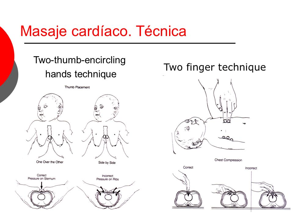 Masaje cardíaco. Técnica Two-thumb-encircling hands technique Two finger technique