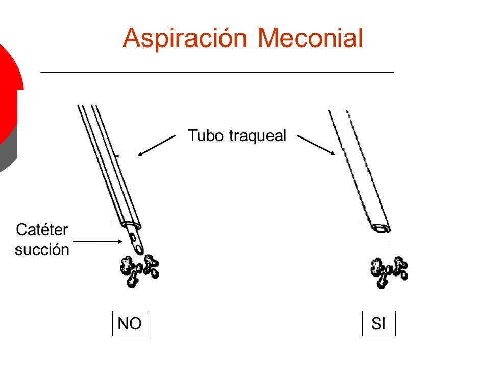 Tubo traqueal Catéter succión Aspiración Meconial NO SI