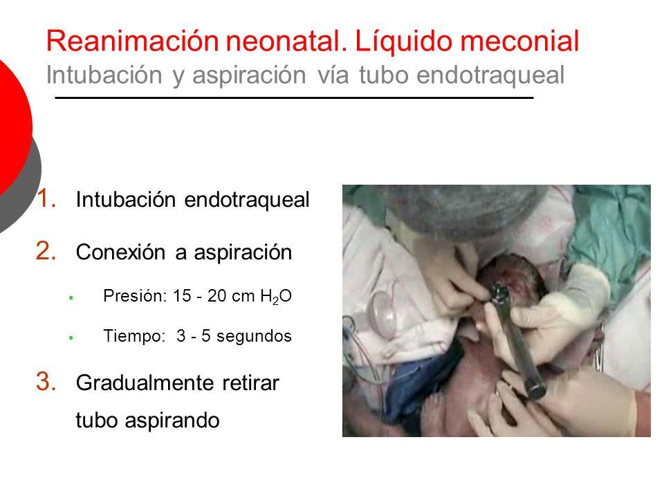 Reanimación neonatal. Líquido meconial Intubación y aspiración vía tubo endotraqueal 1. Intubación endotraqueal 2. Conexión a aspiración Presión: 15 -