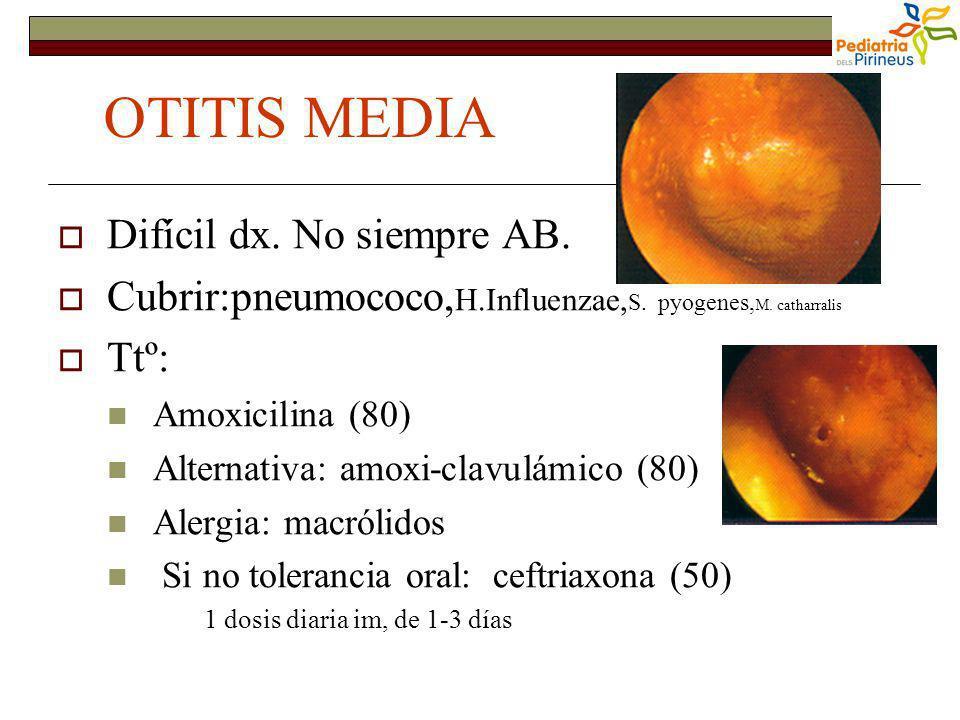 OTITIS MEDIA Difícil dx. No siempre AB. Cubrir:pneumococo, H.Influenzae, S. pyogenes, M. catharralis Ttº: Amoxicilina (80) Alternativa: amoxi-clavulám