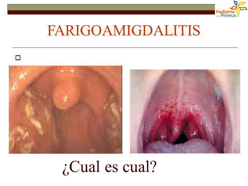 La majoría son víricas (80 %) Las bacterianas: clínica (más frec.