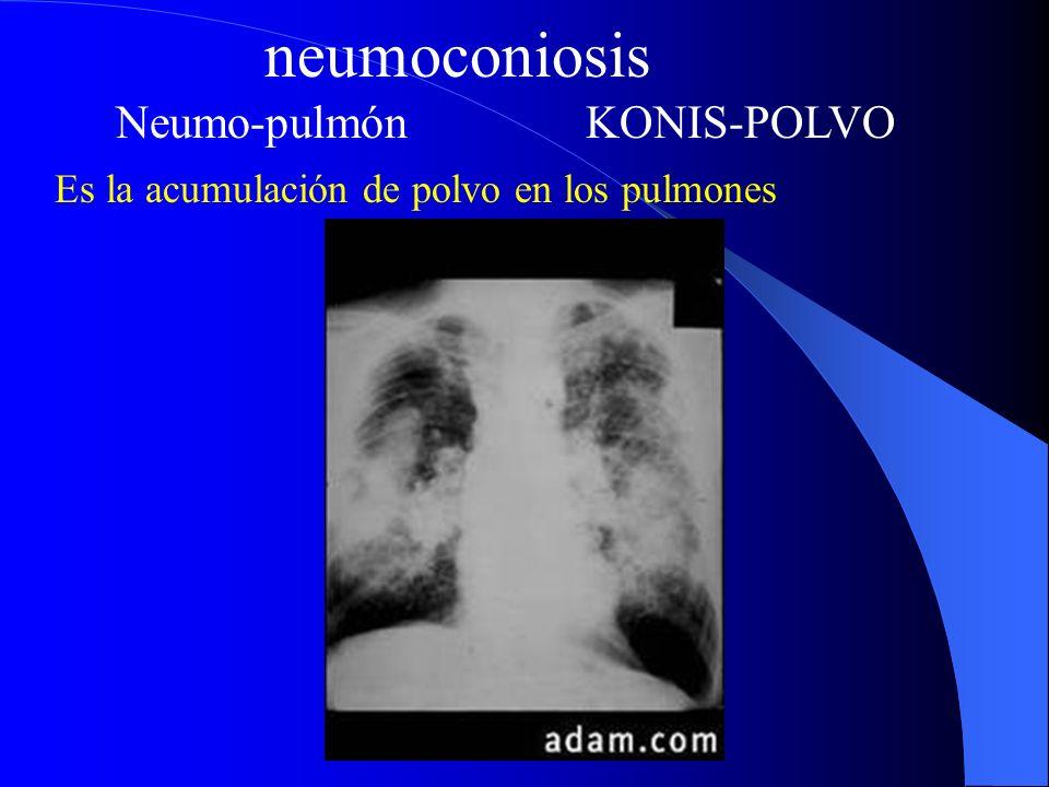 neumoconiosis Tipos de polvo causantes de neumoconiosis Contaminantes inorgánicos: silicosis, asbestosis, antracosis, siderosis y estanosis.
