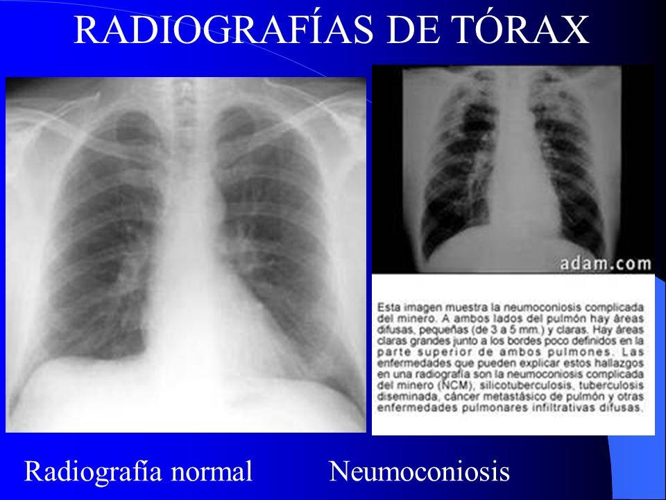 Radiografía normal Neumoconiosis