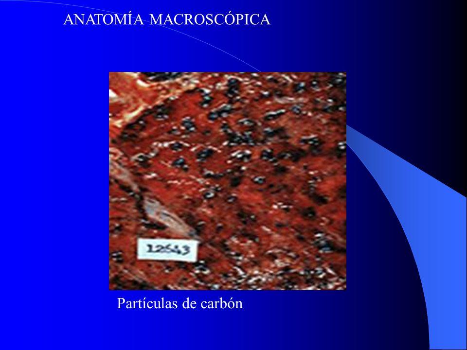ANATOMÍA MACROSCÓPICA Partículas de carbón