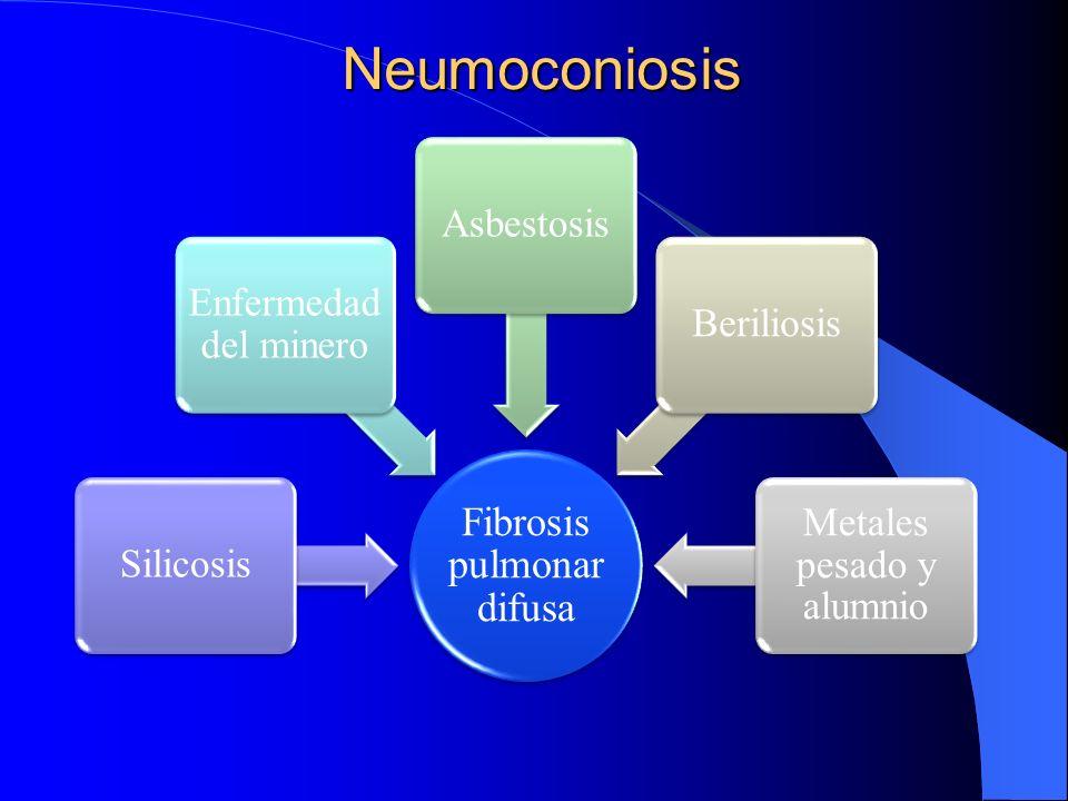Neumoconiosis Fibrosis pulmonar difusa Silicosis Enfermedad del minero AsbestosisBeriliosis Metales pesado y alumnio