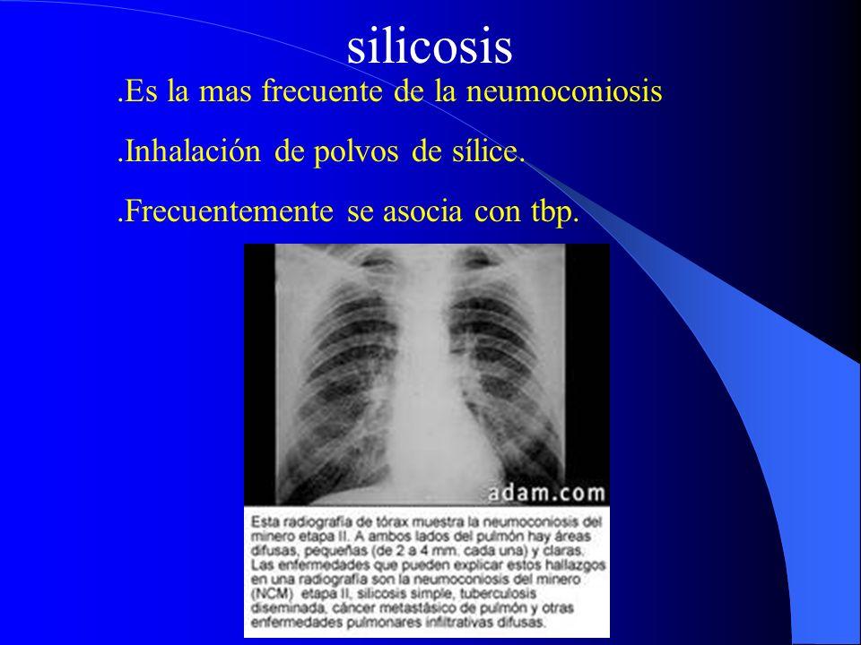 silicosis.Es la mas frecuente de la neumoconiosis.Inhalación de polvos de sílice..Frecuentemente se asocia con tbp.