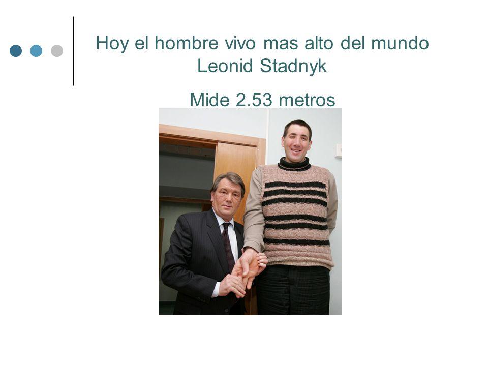 Hoy el hombre vivo mas alto del mundo Leonid Stadnyk Mide 2.53 metros