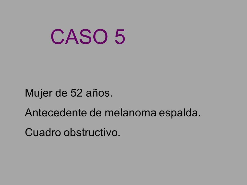 Mujer de 52 años. Antecedente de melanoma espalda. Cuadro obstructivo. CASO 5