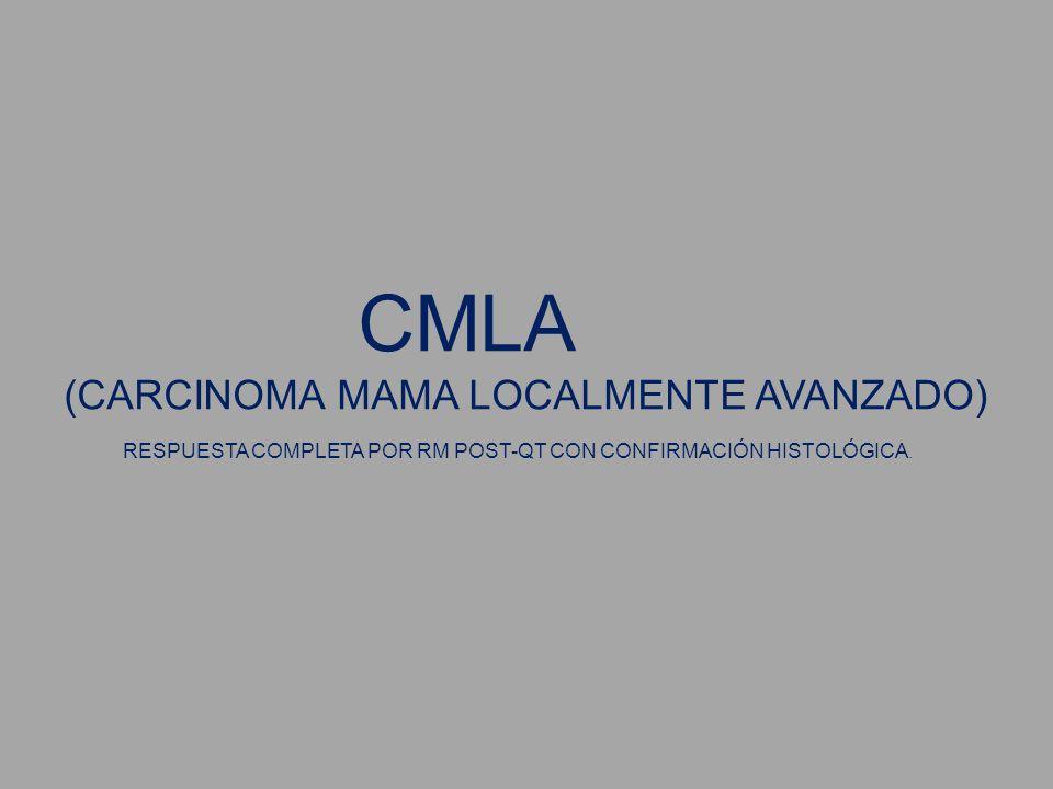 CMLA (CARCINOMA MAMA LOCALMENTE AVANZADO) RESPUESTA COMPLETA POR RM POST-QT CON CONFIRMACIÓN HISTOLÓGICA.