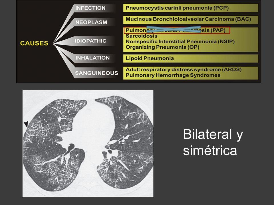 Bilateral y simétrica