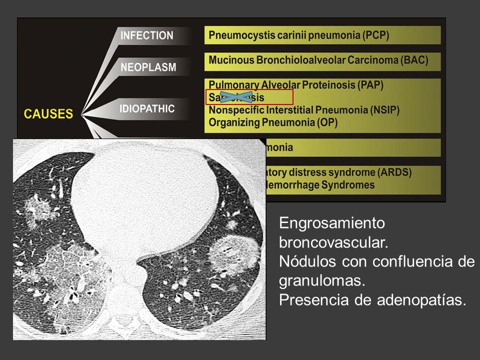 Engrosamiento broncovascular. Nódulos con confluencia de granulomas. Presencia de adenopatías.