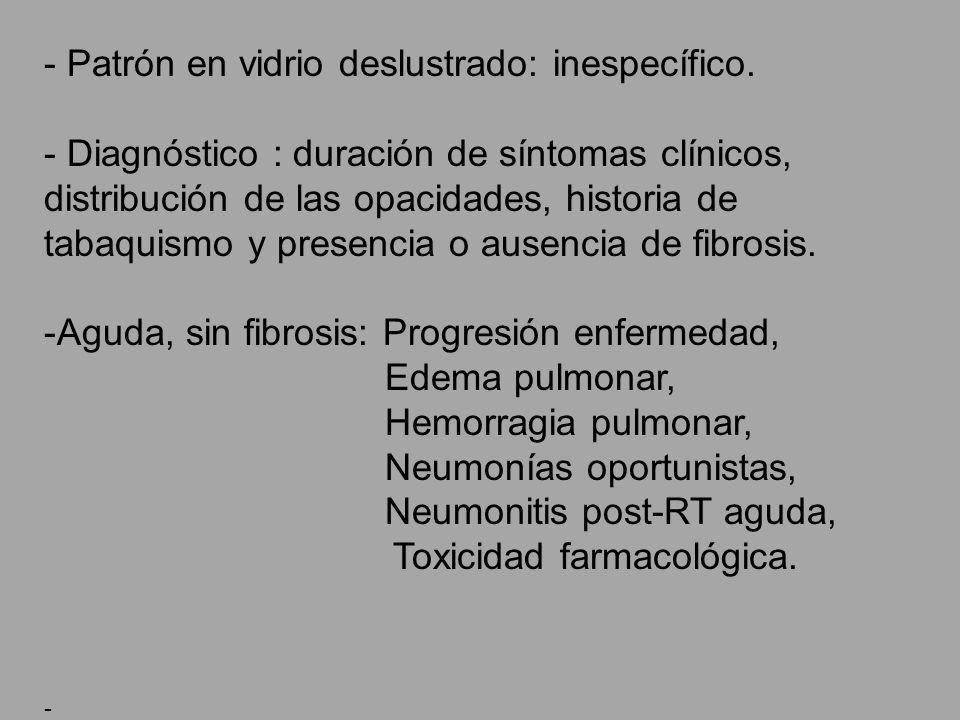 - Patrón en vidrio deslustrado: inespecífico. - Diagnóstico : duración de síntomas clínicos, distribución de las opacidades, historia de tabaquismo y