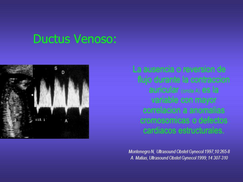 Ductus Venoso: La ausencia o reversion de flujo durante la contraccion auricular (onda A) es la variable con mayor correlacion a anomalias cromosomica