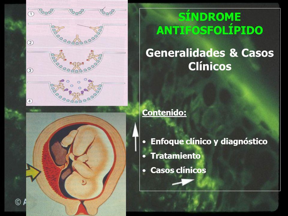 SÍNDROME ANTIFOSFOLÍPIDO Generalidades & Casos Clínicos Contenido: Enfoque clínico y diagnóstico Tratamiento Casos clínicos