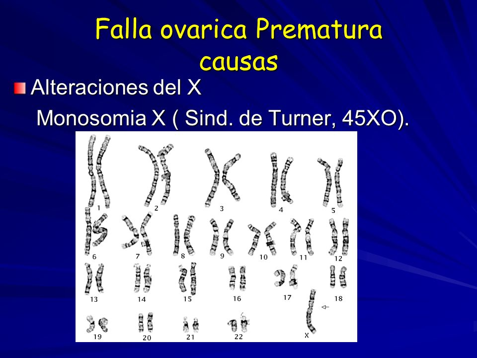 Falla ovarica Prematura causas Alteraciones del X Monosomia X ( Sind. de Turner, 45XO). Monosomia X ( Sind. de Turner, 45XO).