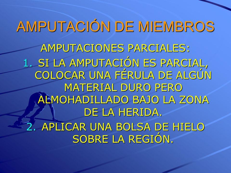 AMPUTACIÓN DE MIEMBROS AMPUTACIONES PARCIALES: 1.SI LA AMPUTACIÓN ES PARCIAL, COLOCAR UNA FÉRULA DE ALGÚN MATERIAL DURO PERO ALMOHADILLADO BAJO LA ZON