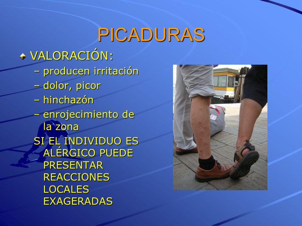 PICADURAS VALORACIÓN: –producen irritación –dolor, picor –hinchazón –enrojecimiento de la zona SI EL INDIVIDUO ES ALÉRGICO PUEDE PRESENTAR REACCIONES