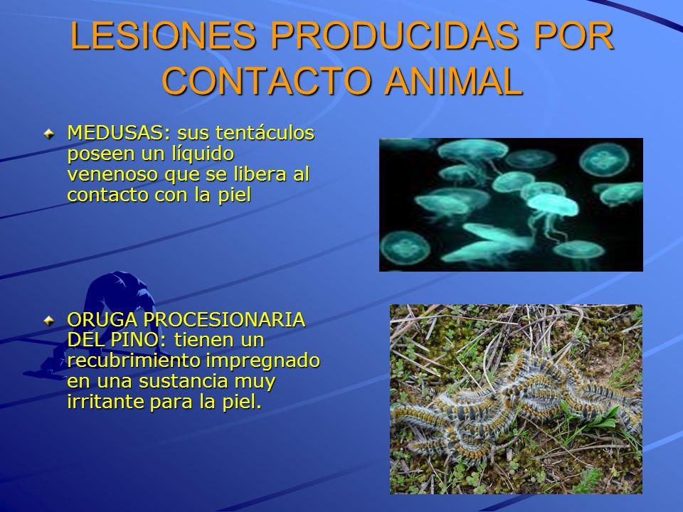 LESIONES PRODUCIDAS POR CONTACTO ANIMAL MEDUSAS: sus tentáculos poseen un líquido venenoso que se libera al contacto con la piel ORUGA PROCESIONARIA D
