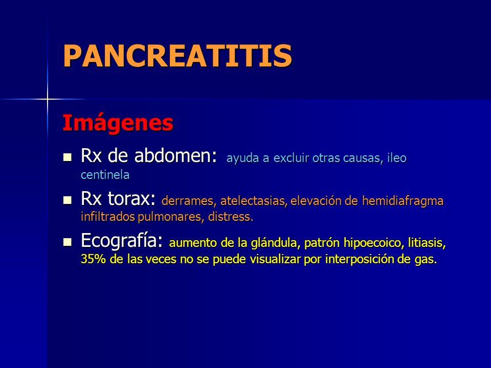 PANCREATITIS Imágenes Rx de abdomen: ayuda a excluir otras causas, ileo centinela Rx de abdomen: ayuda a excluir otras causas, ileo centinela Rx torax