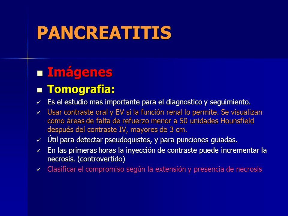 PANCREATITIS Imágenes Imágenes Tomografia: Tomografia: Es el estudio mas importante para el diagnostico y seguimiento. Es el estudio mas importante pa