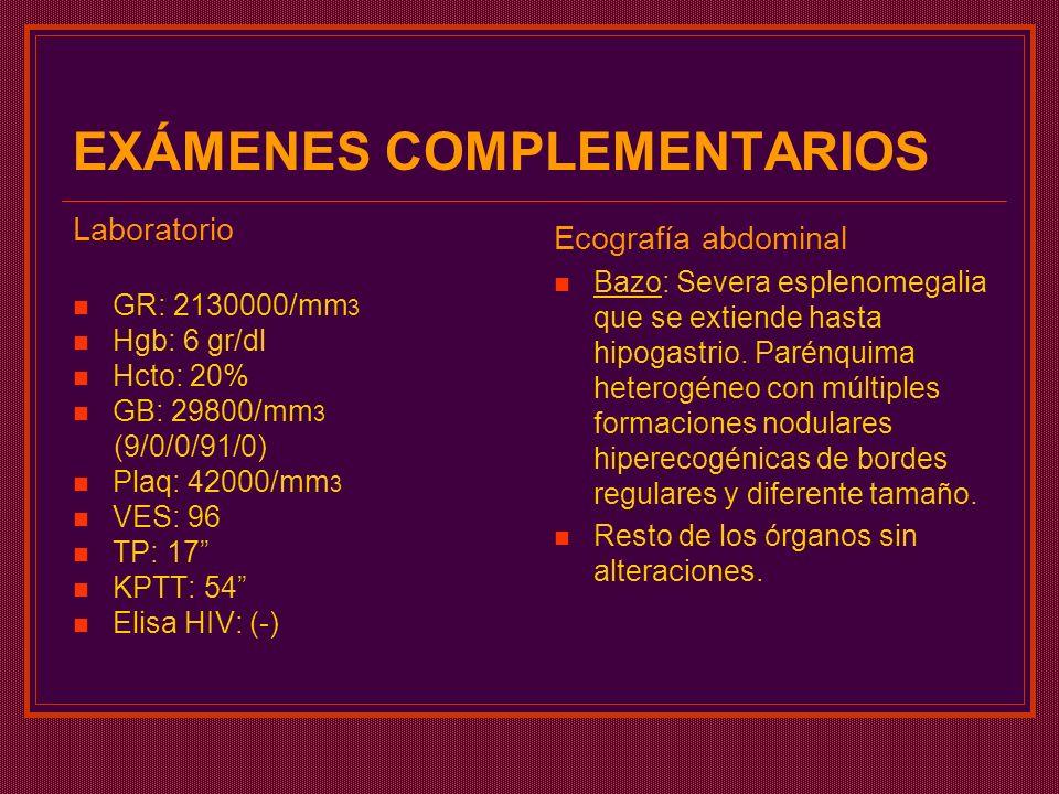 EXÁMENES COMPLEMENTARIOS Laboratorio GR: 2130000/mm 3 Hgb: 6 gr/dl Hcto: 20% GB: 29800/mm 3 (9/0/0/91/0) Plaq: 42000/mm 3 VES: 96 TP: 17 KPTT: 54 Elis