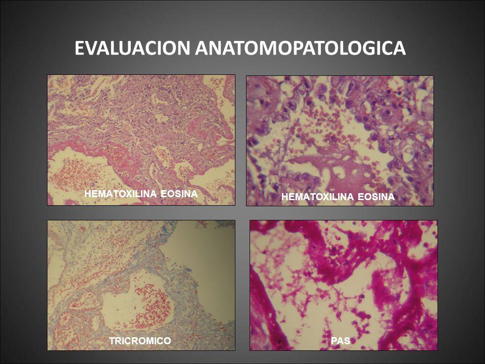 EVALUACION ANATOMOPATOLOGICA HEMATOXILINA EOSINA TRICROMICO PAS