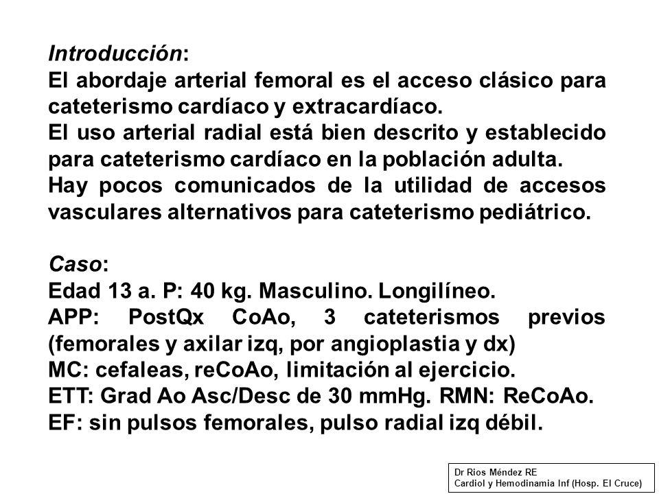 Introducción: El abordaje arterial femoral es el acceso clásico para cateterismo cardíaco y extracardíaco.
