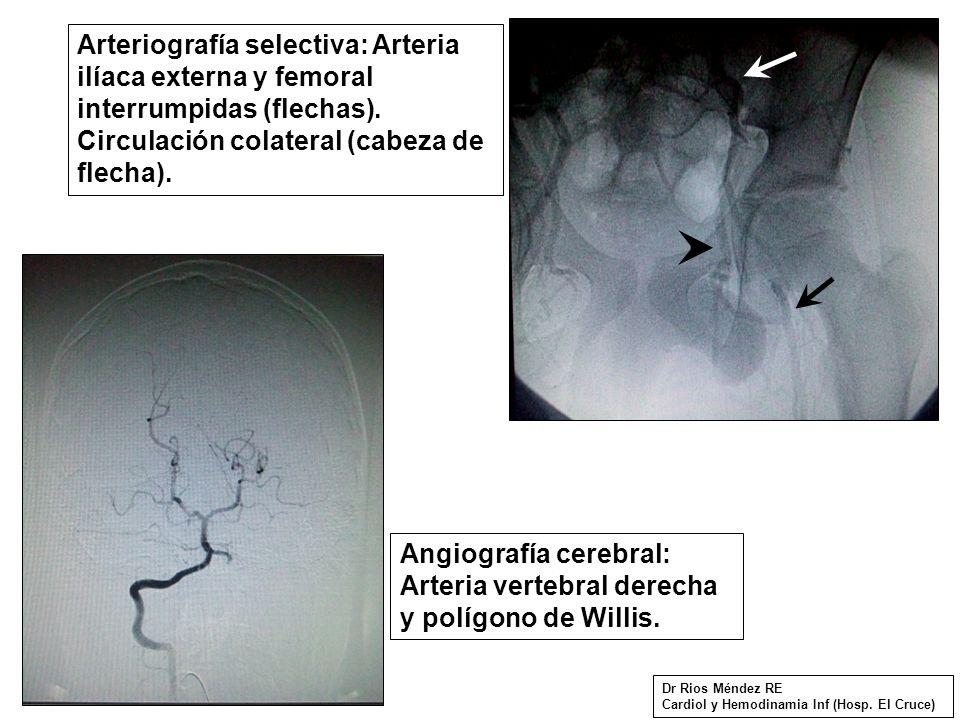 Arteriografía selectiva: Arteria ilíaca externa y femoral interrumpidas (flechas).