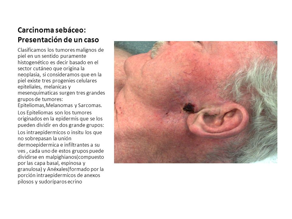 Carcinoma sebáceo: Presentación de un caso Clasificamos los tumores malignos de piel en un sentido puramente histogenético es decir basado en el secto
