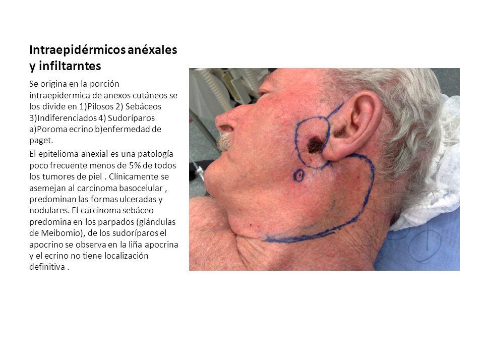 Intraepidérmicos anéxales y infiltarntes Se origina en la porción intraepidermica de anexos cutáneos se los divide en 1)Pilosos 2) Sebáceos 3)Indifere