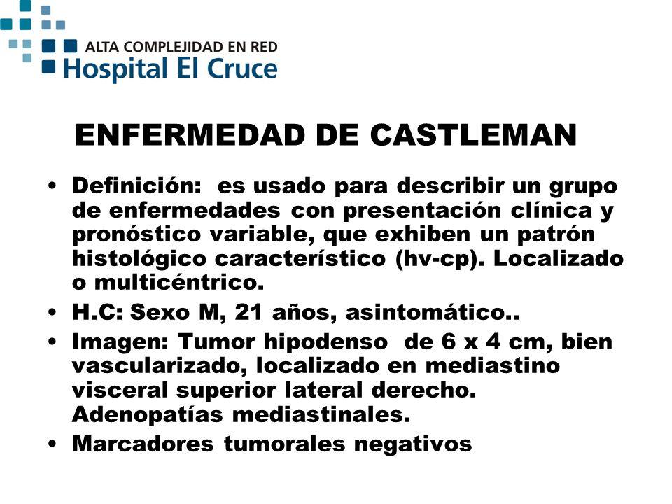 ENFERMEDAD DE CASTLEMAN Definición: es usado para describir un grupo de enfermedades con presentación clínica y pronóstico variable, que exhiben un pa