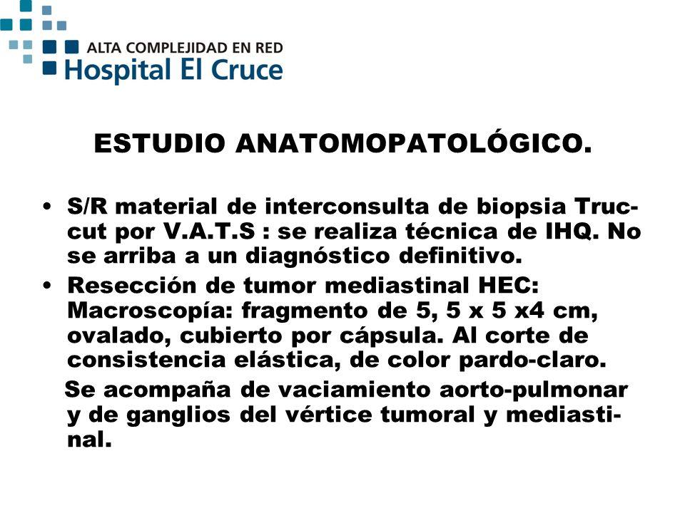 ESTUDIO ANATOMOPATOLÓGICO. S/R material de interconsulta de biopsia Truc- cut por V.A.T.S : se realiza técnica de IHQ. No se arriba a un diagnóstico d