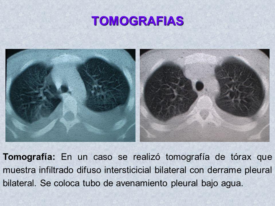 TOMOGRAFIAS Tomografía: En un caso se realizó tomografía de tórax que muestra infiltrado difuso intersticicial bilateral con derrame pleural bilateral