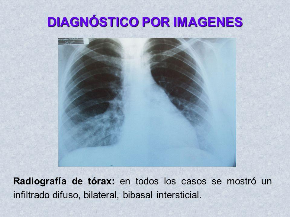 TOMOGRAFIAS Tomografía: En un caso se realizó tomografía de tórax que muestra infiltrado difuso intersticicial bilateral con derrame pleural bilateral.