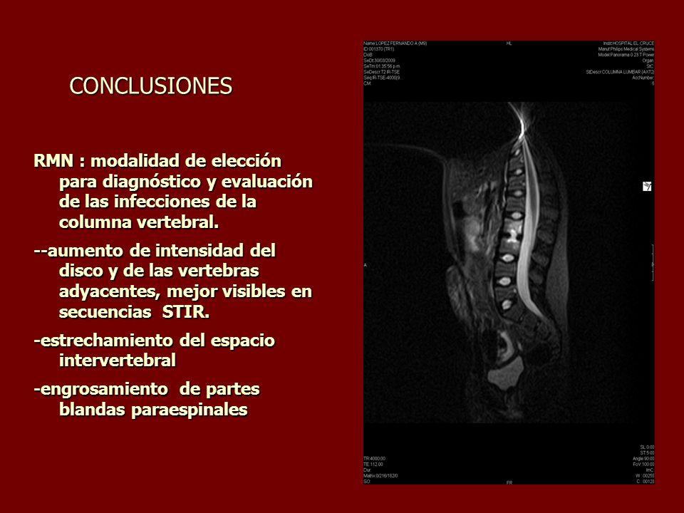 CONCLUSIONES CONCLUSIONES RMN : modalidad de elección para diagnóstico y evaluación de las infecciones de la columna vertebral. --aumento de intensida