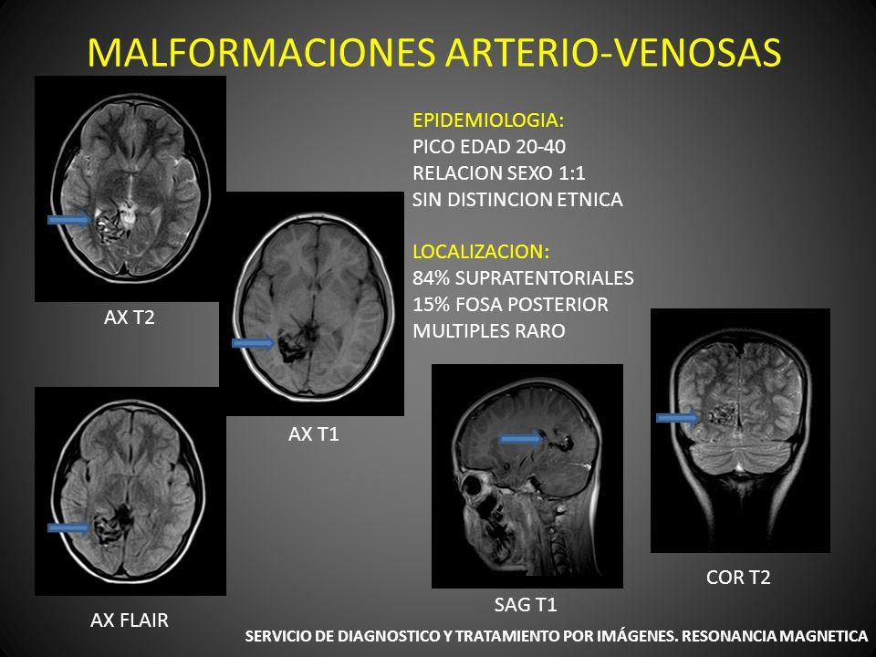 SIGNOS Y SINTOMAS: CEFALEA CONVULSIONES HEMORRAGIA DEFICIT NEUROLOGICO FOCAL SERVICIO DE DIAGNOSTICO Y TRATAMIENTO POR IMÁGENES.