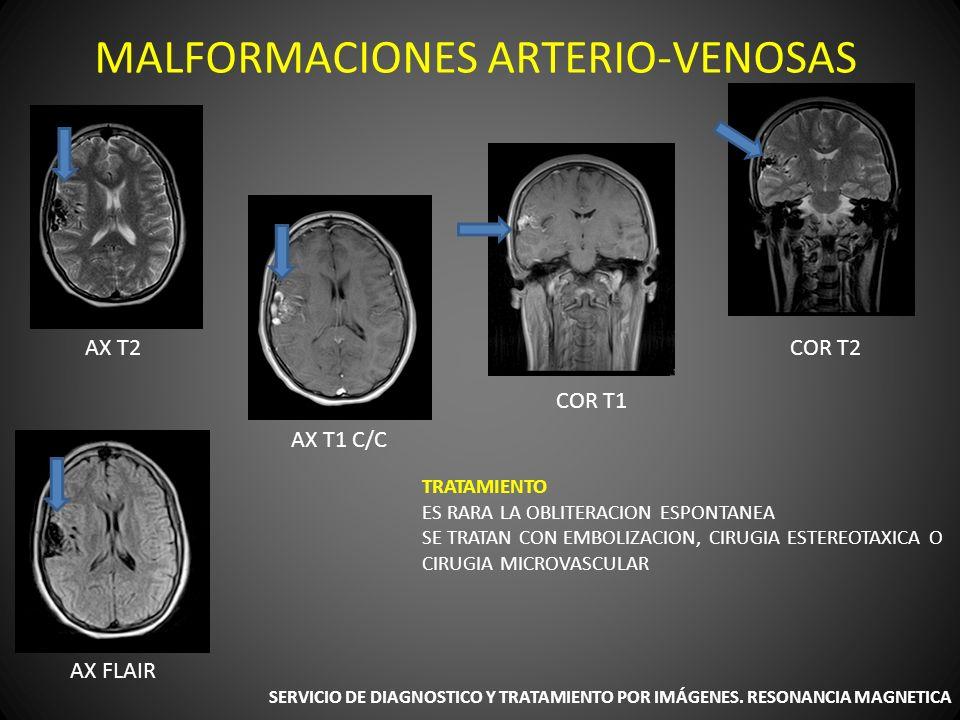 MALFORMACIONES ARTERIO-VENOSAS TRATAMIENTO ES RARA LA OBLITERACION ESPONTANEA SE TRATAN CON EMBOLIZACION, CIRUGIA ESTEREOTAXICA O CIRUGIA MICROVASCULAR SERVICIO DE DIAGNOSTICO Y TRATAMIENTO POR IMÁGENES.