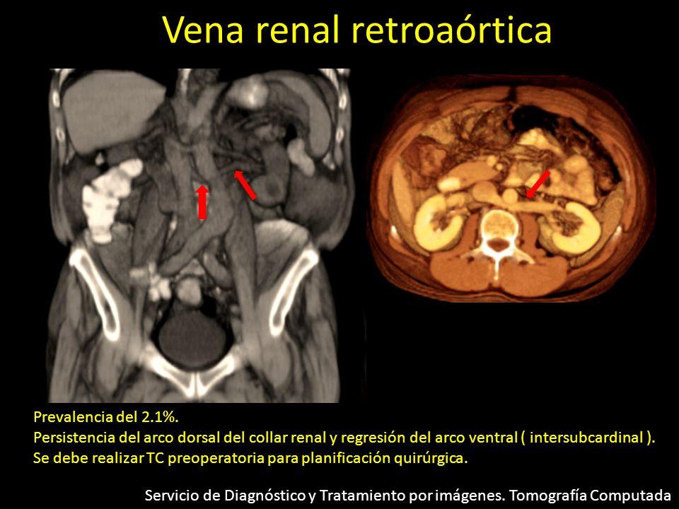 Vena renal retroaórtica Prevalencia del 2.1%. Persistencia del arco dorsal del collar renal y regresión del arco ventral ( intersubcardinal ). Se debe