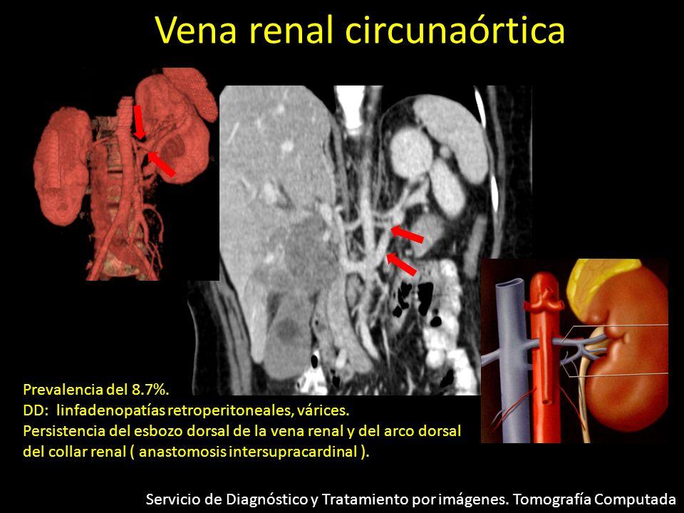 Vena renal circunaórtica Prevalencia del 8.7%. DD: linfadenopatías retroperitoneales, várices. Persistencia del esbozo dorsal de la vena renal y del a