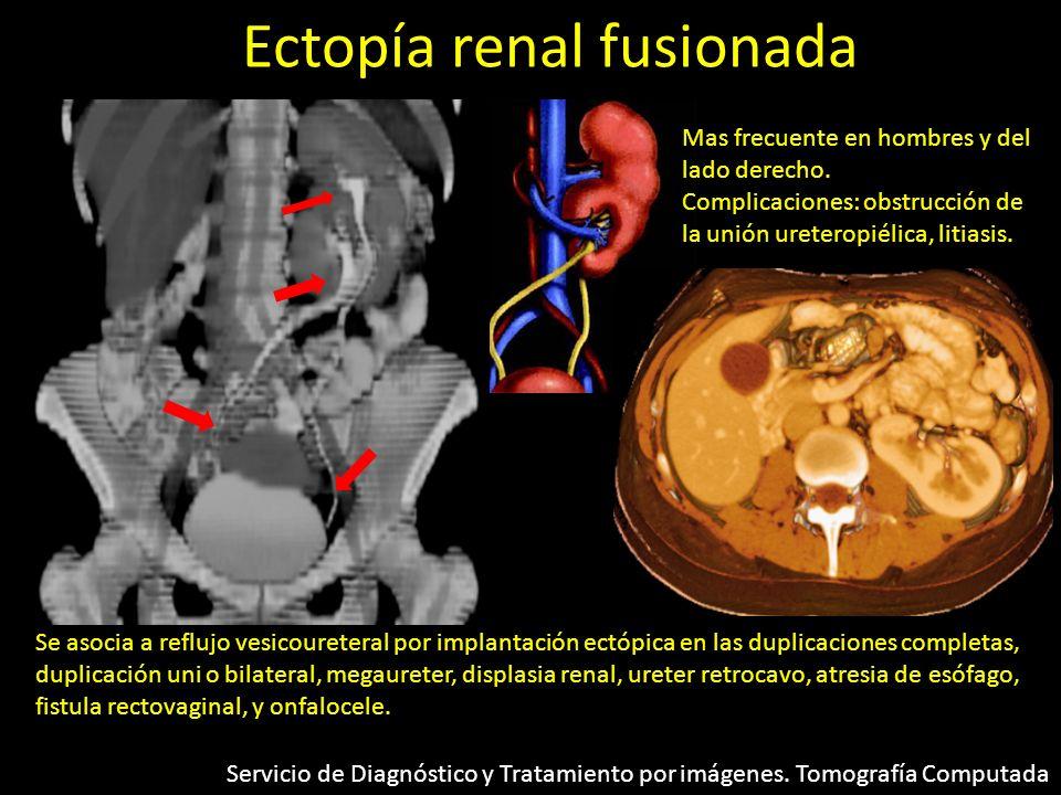 Ectopía renal fusionada Mas frecuente en hombres y del lado derecho. Complicaciones: obstrucción de la unión ureteropiélica, litiasis. Se asocia a ref
