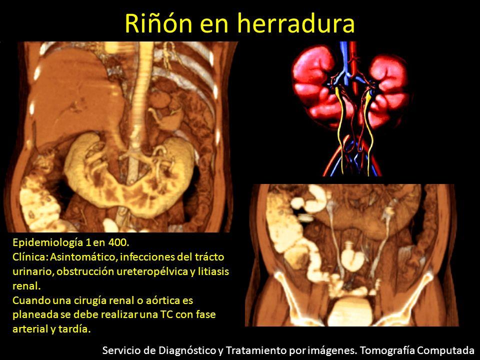 Riñón en herradura Epidemiología 1 en 400. Clínica: Asintomático, infecciones del trácto urinario, obstrucción ureteropélvica y litiasis renal. Cuando