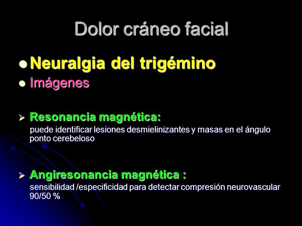 Dolor cráneo facial Neuralgia del trigémino Neuralgia del trigémino Imágenes Imágenes Resonancia magnética: Resonancia magnética: puede identificar le