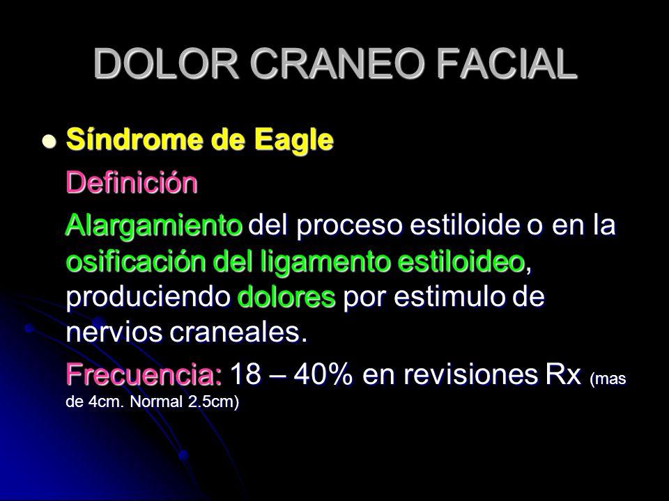 DOLOR CRANEO FACIAL Síndrome de Eagle Síndrome de Eagle Definición Definición Alargamiento del proceso estiloide o en la osificación del ligamento est