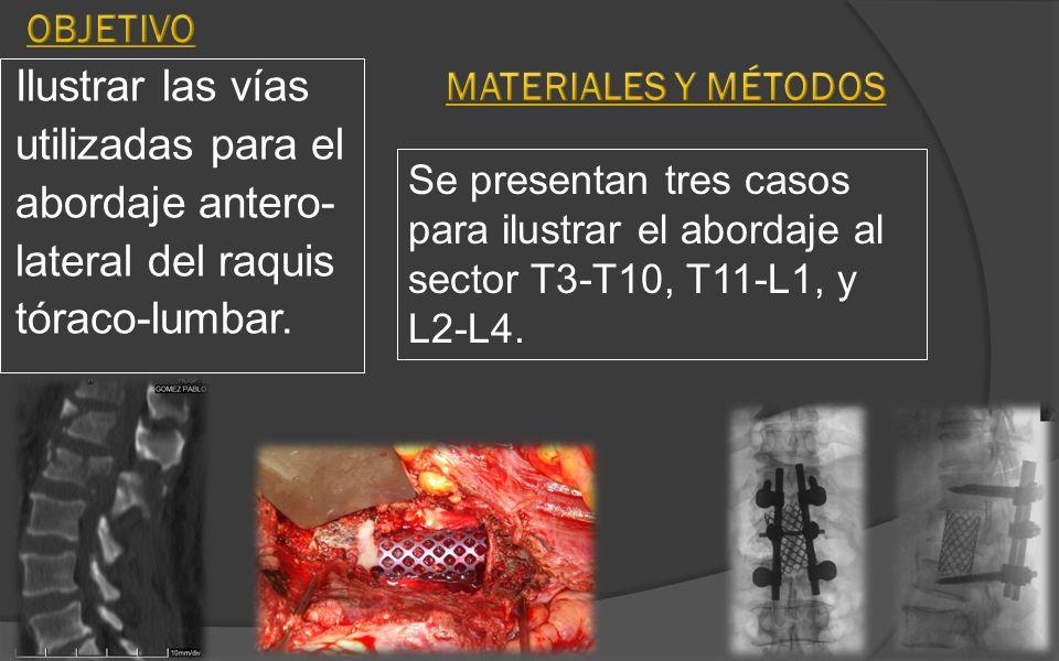 Ilustrar las vías utilizadas para el abordaje antero- lateral del raquis tóraco-lumbar. Se presentan tres casos para ilustrar el abordaje al sector T3