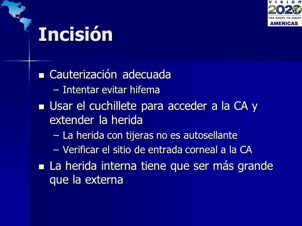 Incisión Cauterización adecuada Cauterización adecuada –Intentar evitar hifema Usar el cuchillete para acceder a la CA y extender la herida Usar el cu