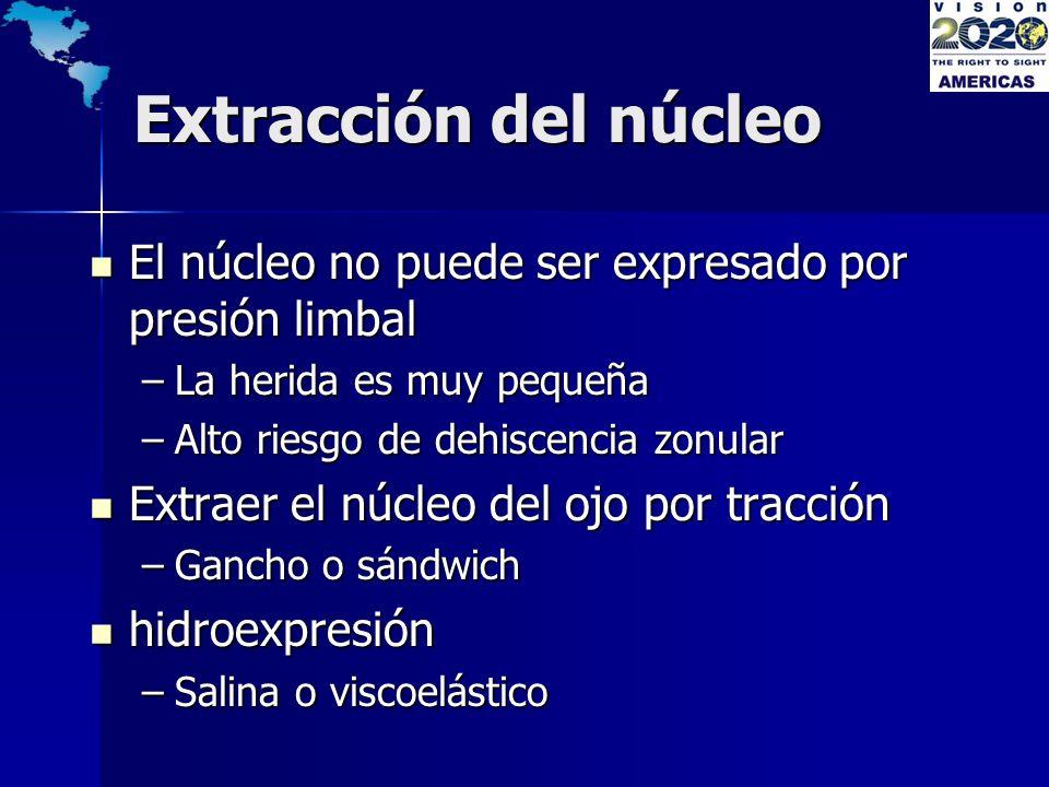 Extracción del núcleo El núcleo no puede ser expresado por presión limbal El núcleo no puede ser expresado por presión limbal –La herida es muy pequeñ